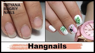 Hangnail Disaster! | Manicure and Summer Design