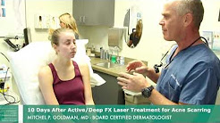 hqdefault - Acne Scar Laser Treatment San Diego