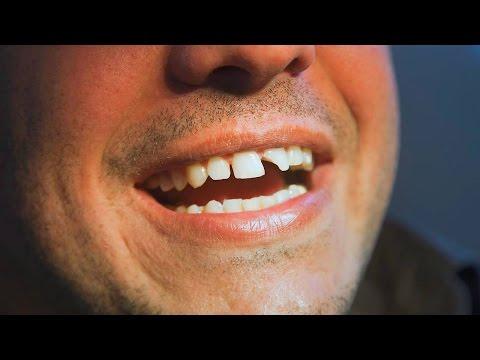 Сонник шатается и болит зуб