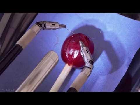 O avanço da Cirurgia Robótica