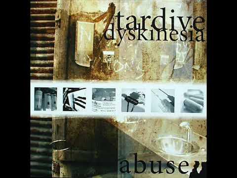 Tardive Dyskinesia - Diaz Sin Luz
