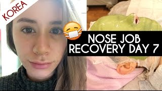 NOSE JOB PLASTIC SURGERY IN KOREA VLOG DAY 7 RECOVERY