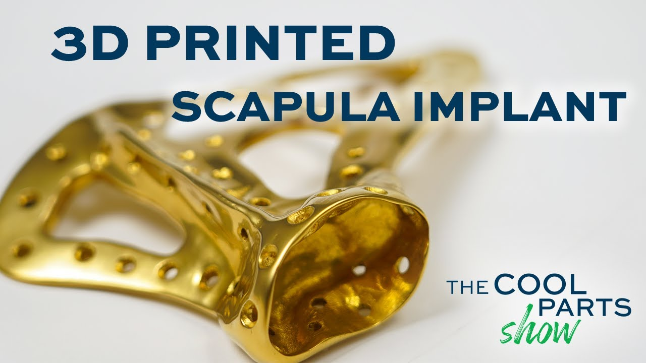 3D Printed Scapula Customized for Patient: The Cool Parts Show #25