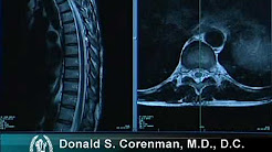 hqdefault - Upper Back Pain Normal Mri