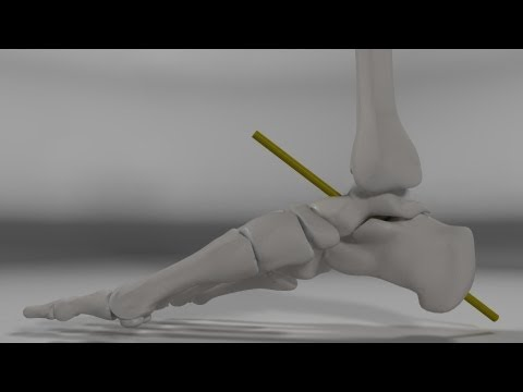 Over Pronation & Supination Motion Biomechanics of the Subtalar Joint Explained