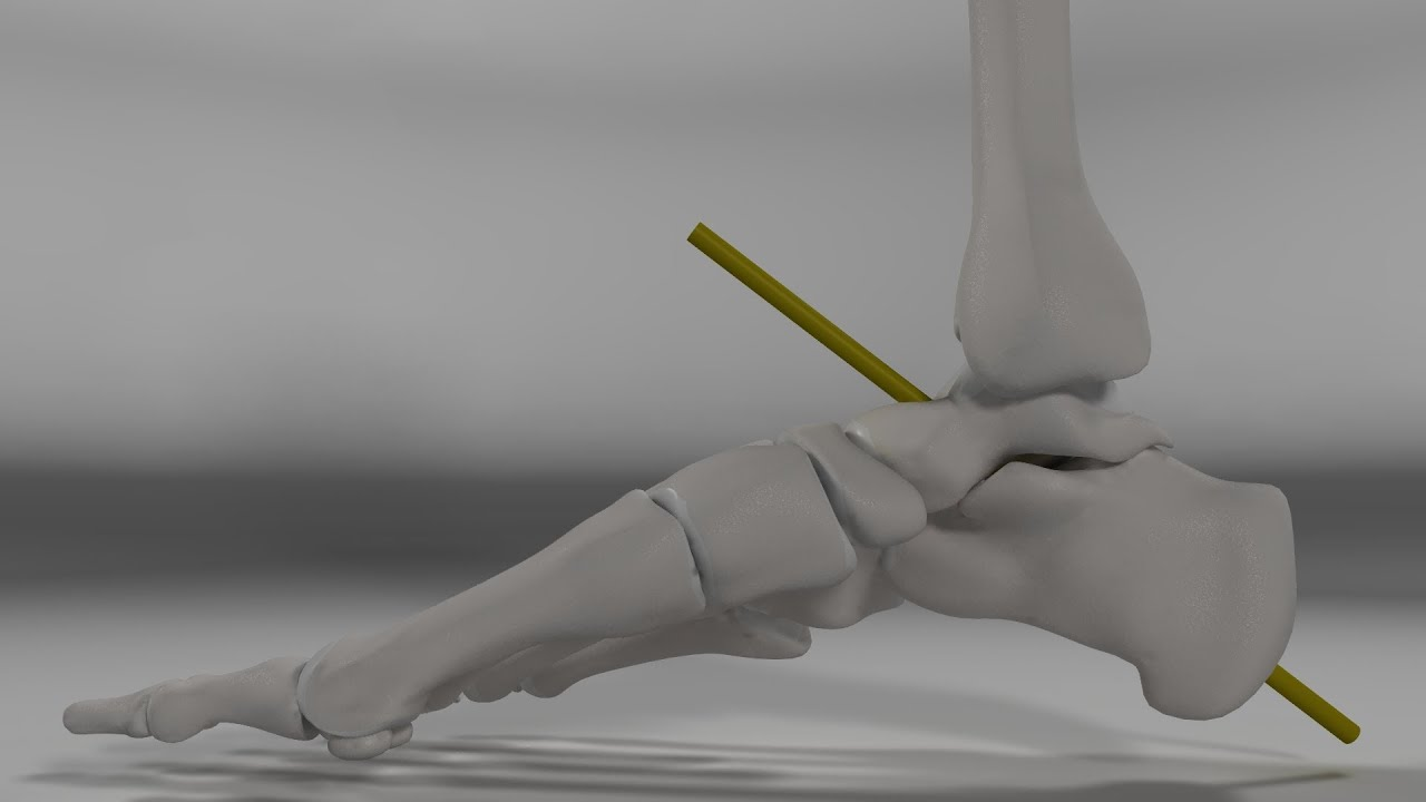 Over Pronation & Supination Motion Biomechanics of the Subtalar ...