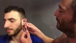 Blumenkohl Ohr Punktion
