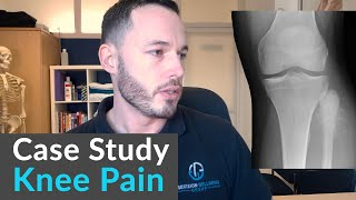 Osteopathic case study- a life changing ...