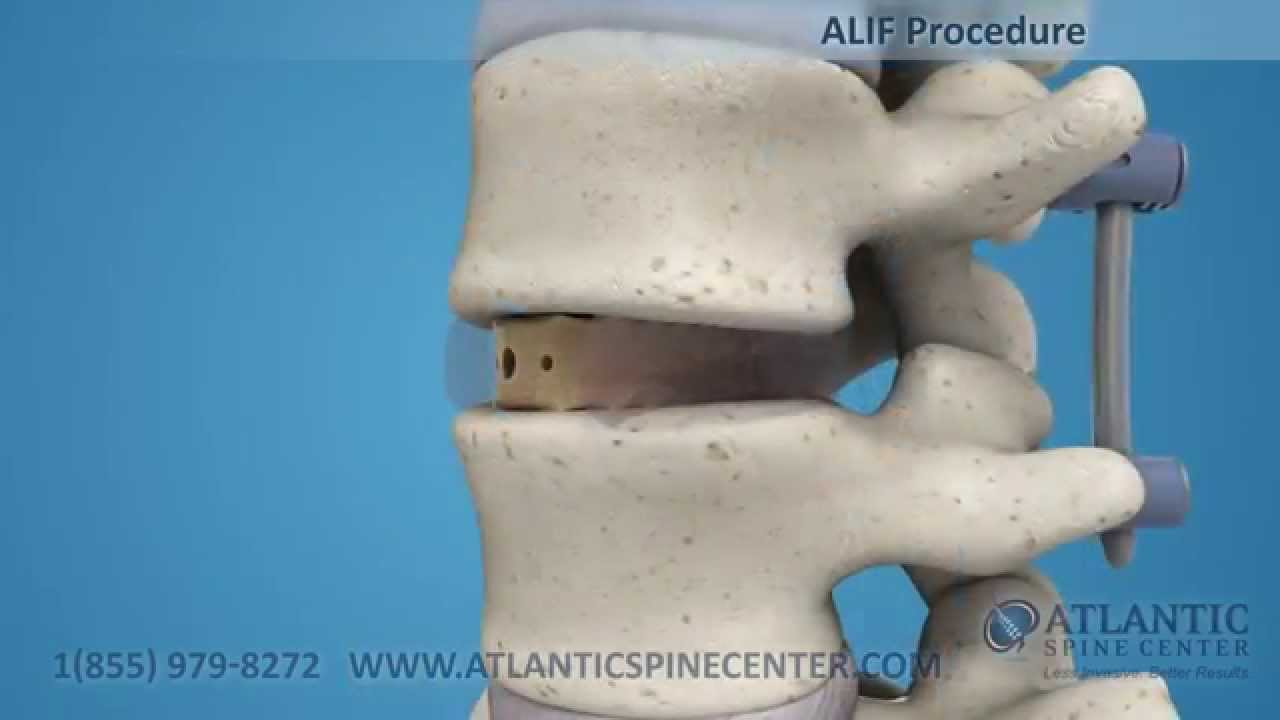 Download Anterior Lumbar Interbody Fusion Overview