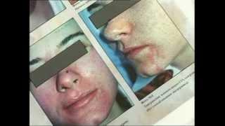 Дерматология в клинике лазерной медицины Л-Мед(Клиника лазерной медицины