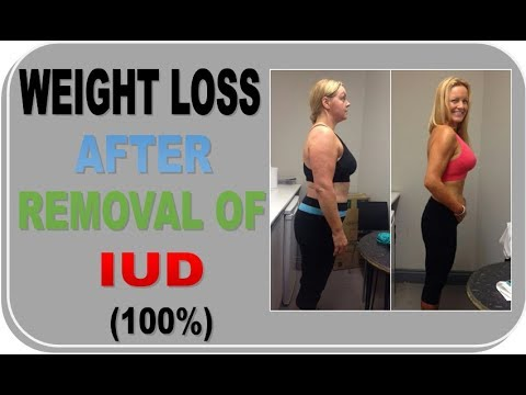 Weight Loss After IUD Removal - A Must Watch For All Women