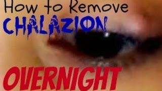 How To Remove/Get Rid Of Chalazion OverNight!!