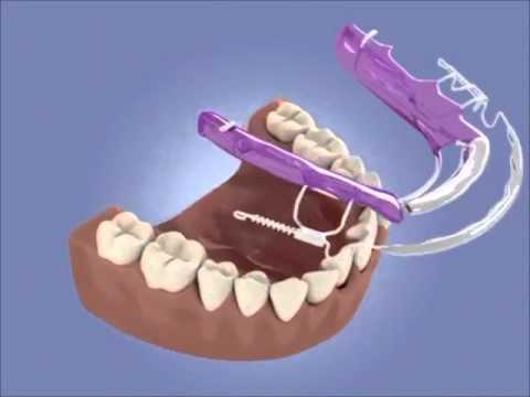 How does inman aligner braces work to straighten up teeth youtube how does inman aligner braces work to straighten up teeth solutioingenieria Image collections