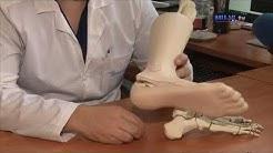 Нов метод за лечение на фрактура на пета