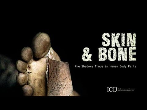 Skin and Bone: the Shadowy Trade in Human Body Parts