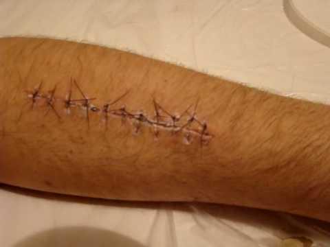 Retiro de puntos de sutura
