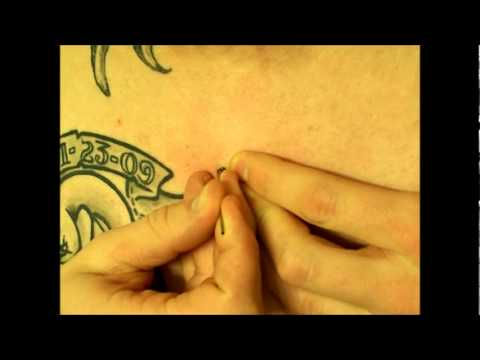 Micro Dermal AT HOME REMOVAL
