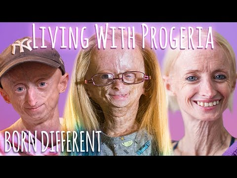 Living With Progeria (30 Min Documentary) | BORN DIFFERENT