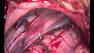 Microsurgical fenestration of a right cerebellopontine angle arachnoid cyst