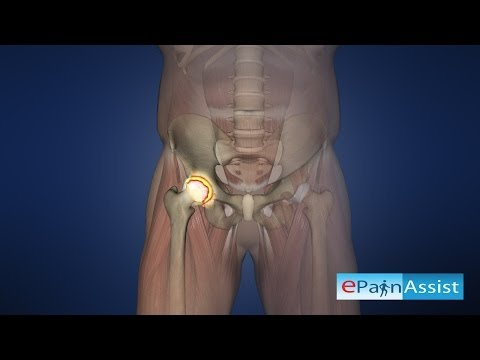 Hip Joint Arthroscopy To Know The Cause Of Hip Pain