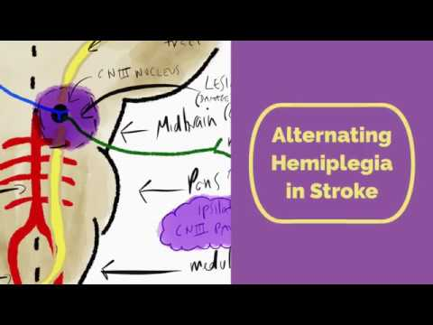 alternating hemiplegia in stroke youtube