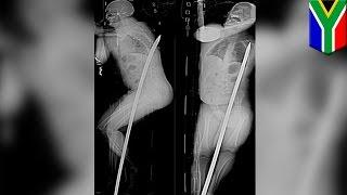 Górnik cudem przeżywa przebity metalowym prętem na wylot