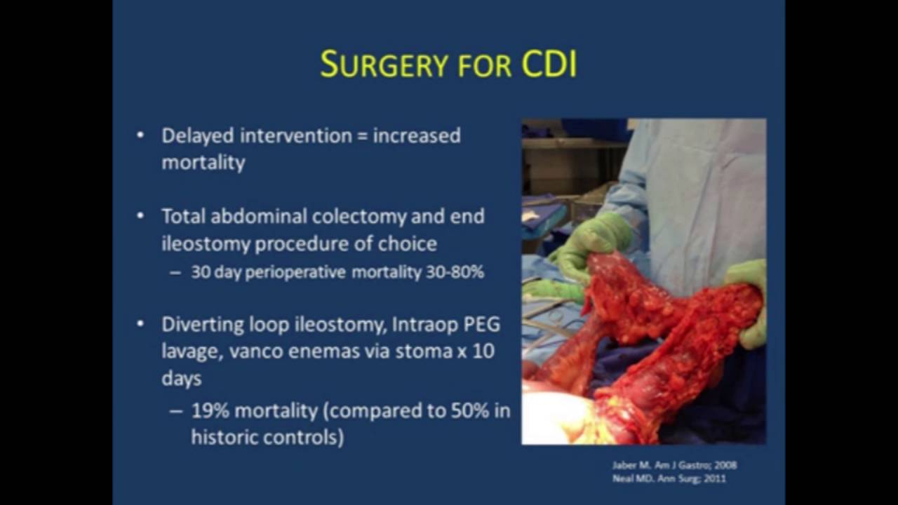 what are symptoms of c diff
