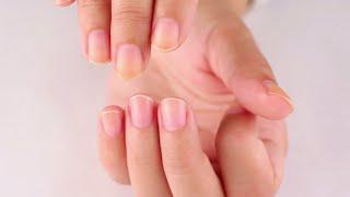 DIY: Jak vybělit nažloutlé nehty!