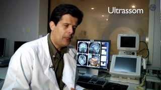 Ressonância magnética isquêmicas alterações