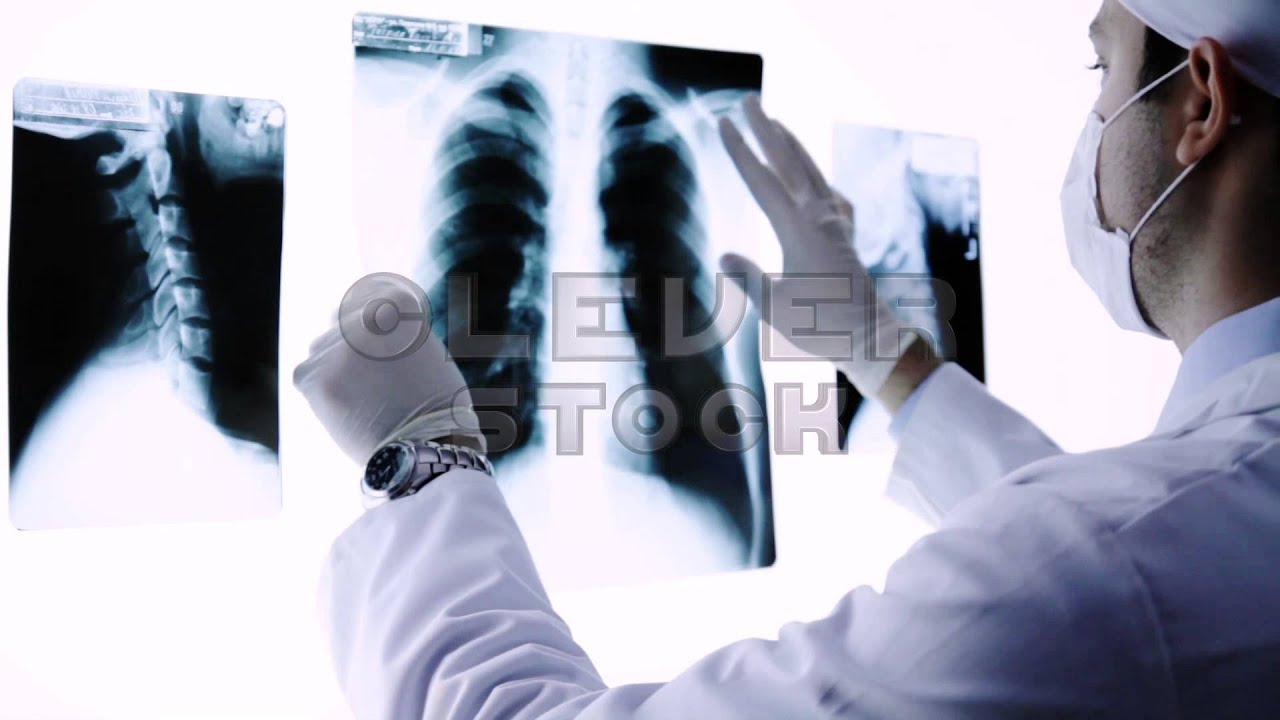 Young Doctor Placing X Ray In Radiology Stock Footage Youtube