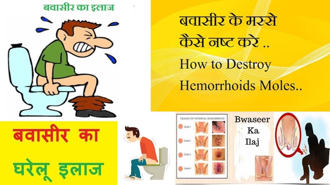 This horrible hemorrhoids. Home Treatment