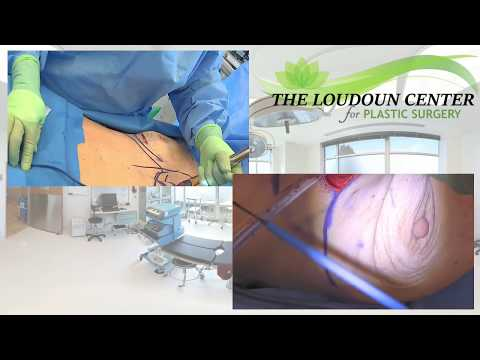 Breast Implant Exchange & Reverse Tummy Tuck: Plastic Surgery Live Stream