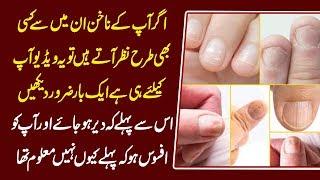 What Your Nails Say About Your Health, Ridges, White Spots, Lines, Bumps Urdu Hindi   Urdu Lab