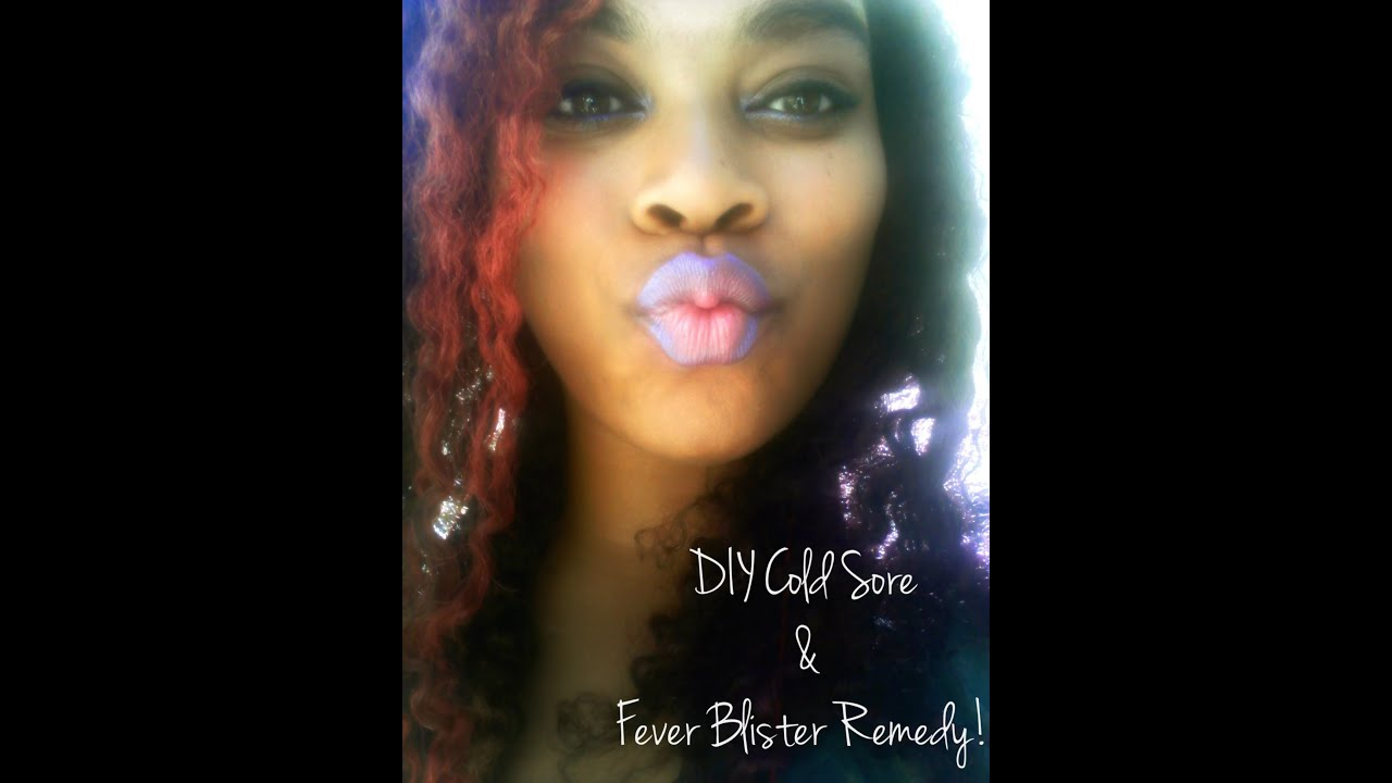 diy cold sore amp fever blister remedy youtube