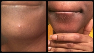 HOW TO GET RID OF PIMPLES OVERNIGHT 100% Results | Natural & Cheap Products