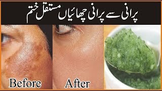 Cover images Pigmentation Treatment At Home | Skin Care Tips For Girls | Chaiyon Ka Ilaj In Urdu