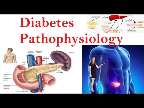 Diabetes Pathophysiology -  Processes Associated with Diabetes !