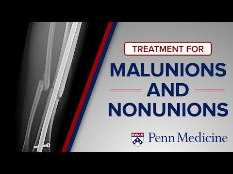 Emerging Techniques For Malunions And Nonunions | The Penn Orthoplastic Limb Salvage Center