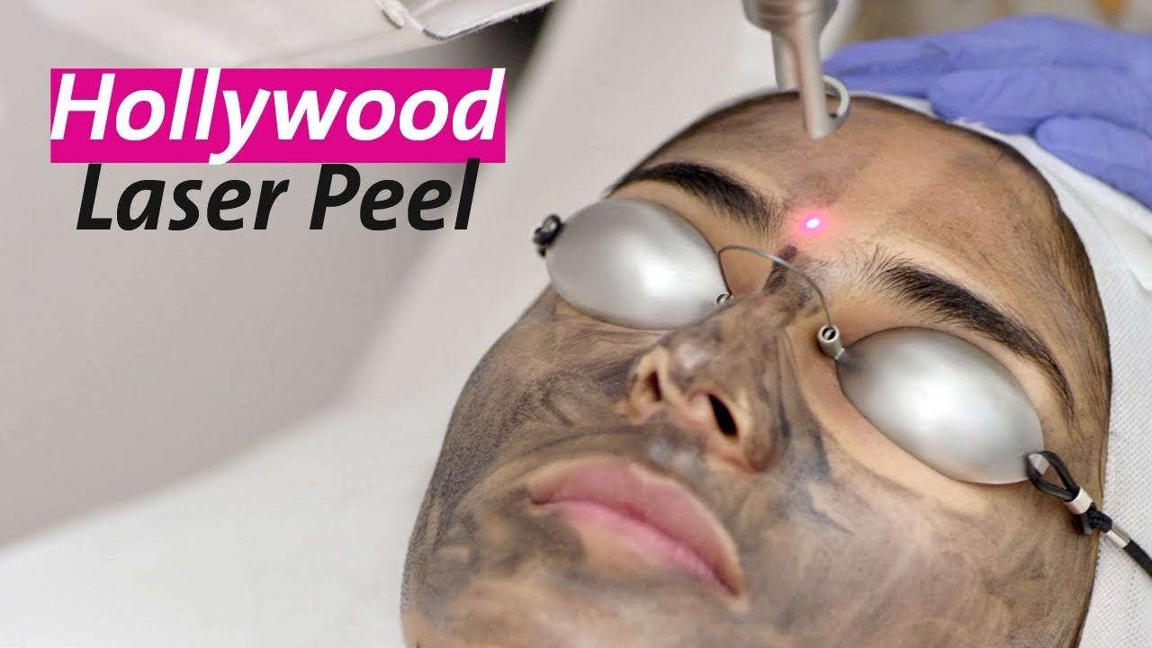 Hollywood Laser Peel All You Need To Know About