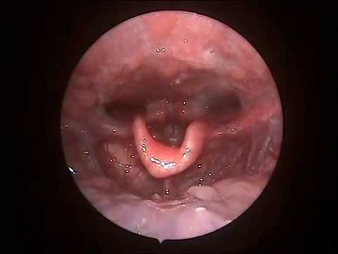 Removal Of Impacted Fishbone In The Throat