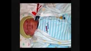 Baby born at 25 weeks gestation