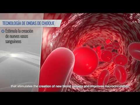 Boston Medical Group: Tratamiento de la Disfunción Eréctil con Ondas de Choque