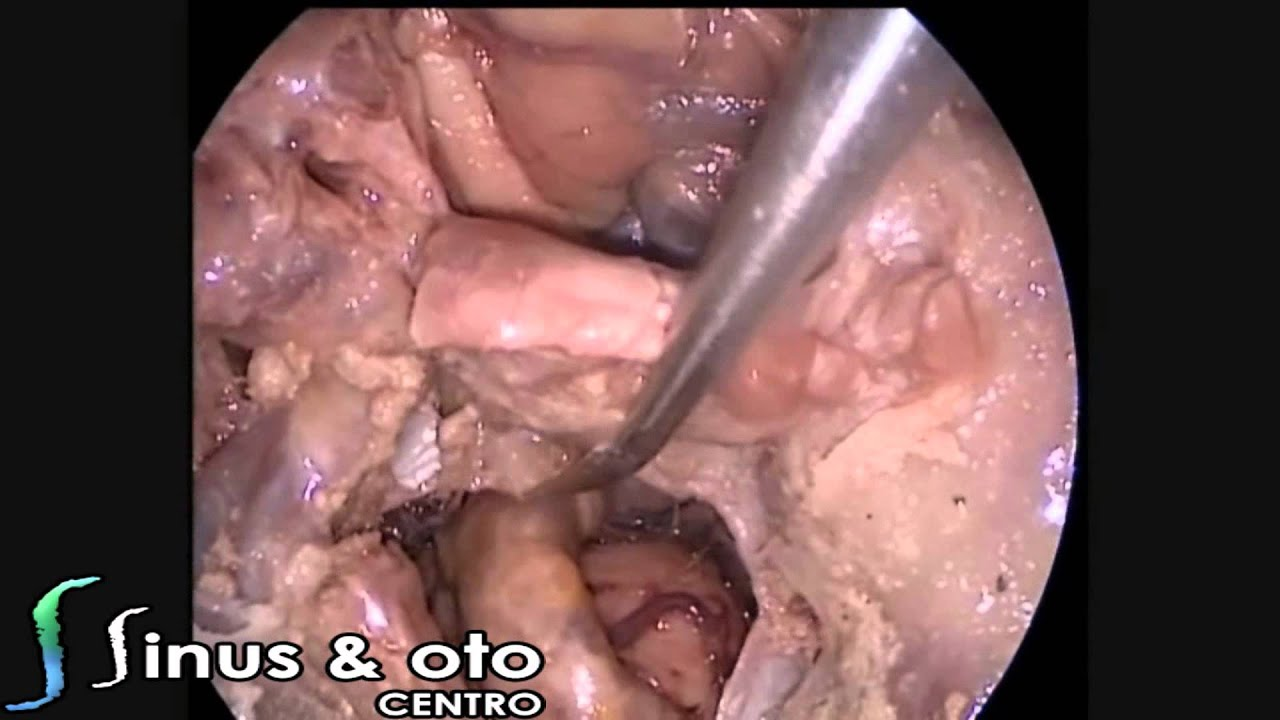 Endoscopic Skull Base Dissection + Draf 3 Approach - YouTube