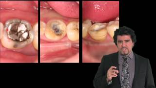 A New Common Sense Approach to Full Mouth Rehabilitation Using Direct Composite -Dr. Ruiz- LSM