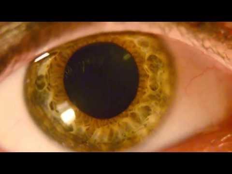 Pupil Constriction and Dilation HD Macro Nikon D5100- Detailed Dark Green Iris