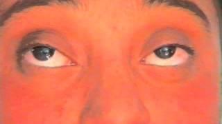 SINGH ORBICULARIS OCULI PLICATION FOR PTOSIS