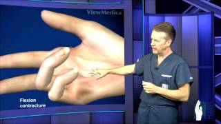 Dupuytrens Contracture Surgery