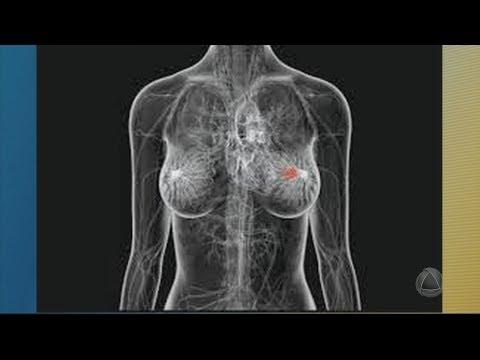 Cobertura da Mamografia em Sergipe está abaixo da média do Nordeste - JORNAL DO ESTADO