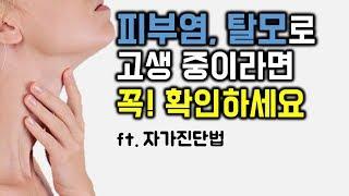 피부염, 탈모가 갑상선 때문일 수도 있다...?  여러분도 꼭 확인해보세요! ㅣft. 자가진단법ㅣ여드름, 모낭염, 지루성피부염, 두피염, 피부건조, 피부가려움증, 습진, 비듬