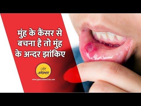 जानिए क्यों होता हैं मुँह का कैंसर,  क्या है इसका इलाज || Oral Cancer:  Symptoms and treatment